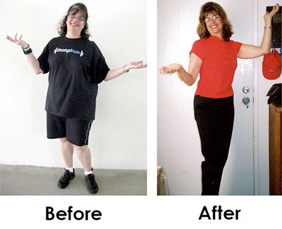 Lynn Sasai Before and After